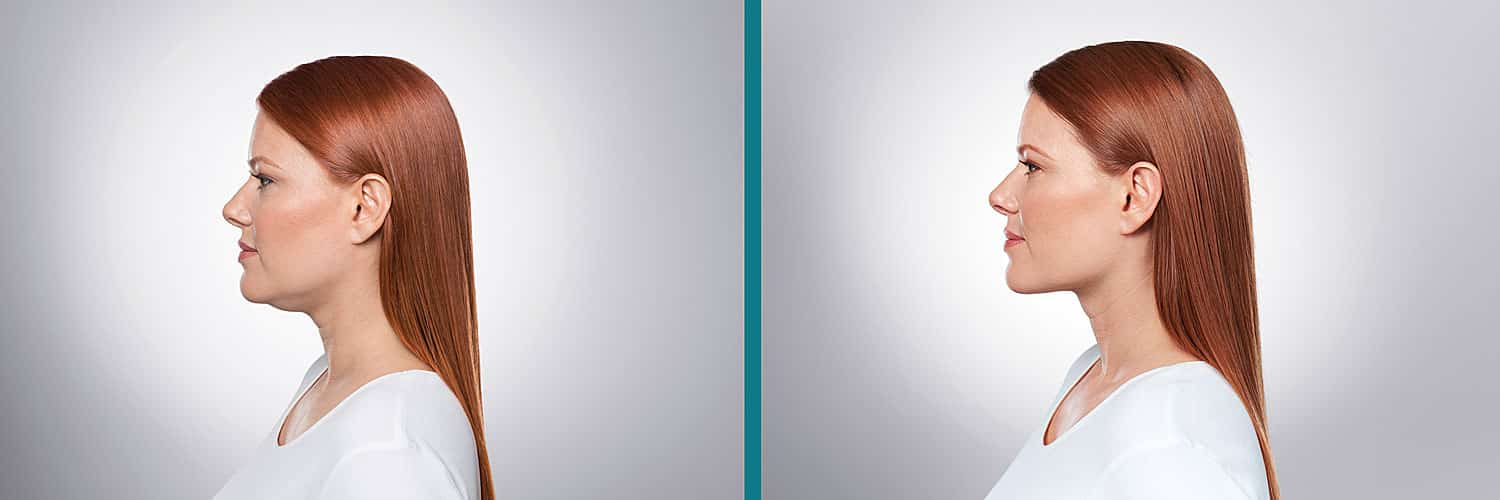 Kybella Before and After Woman