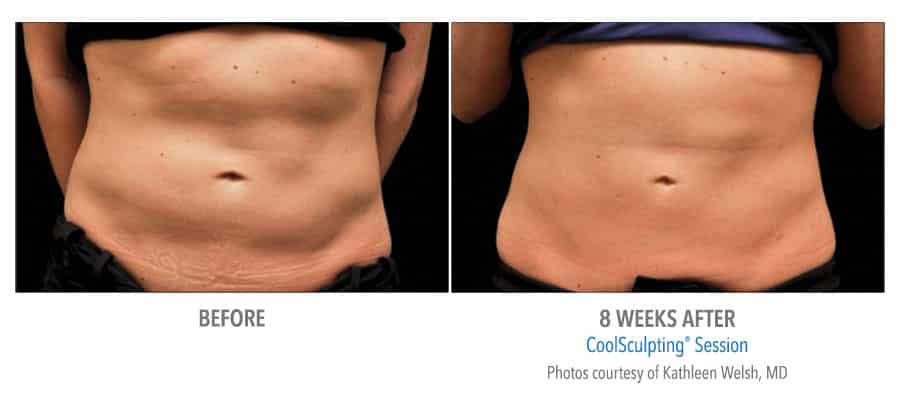 CoolSculpting Before After Woman Abs 8 Weeks