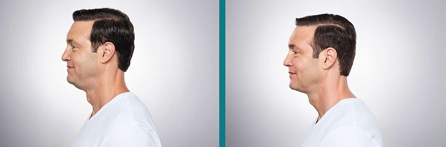 Kybella Before and After Man