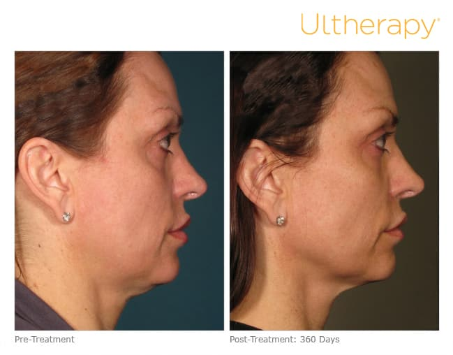 Ultherapy Before & After 360 days