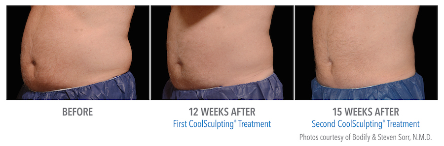 before and after coolsculpting treatment of a man