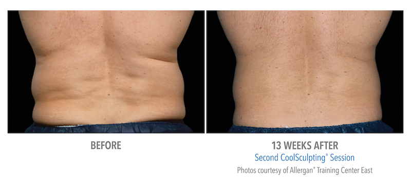 male before and 13 weeks after of coolsculpting session