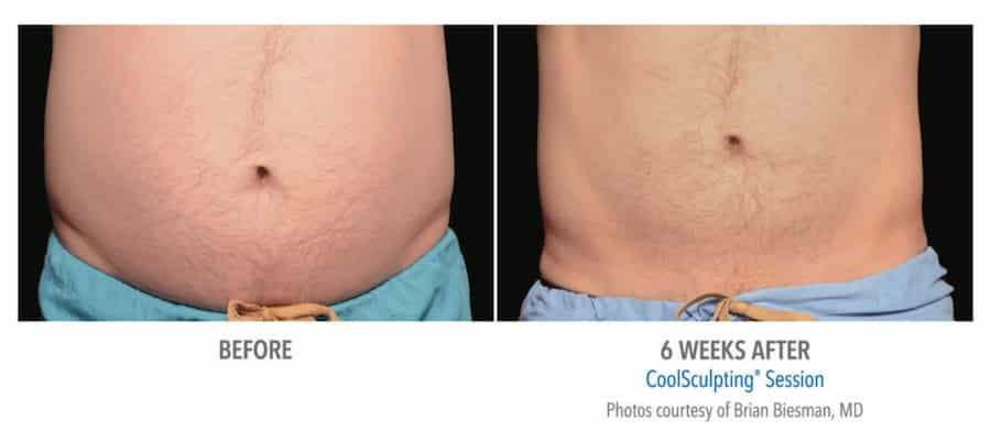 male before and 6 weeks after of coolsculpting session